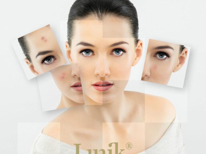 ¿Por qué los adolescentes tienen acné?: Tratamientos para decirleadiós