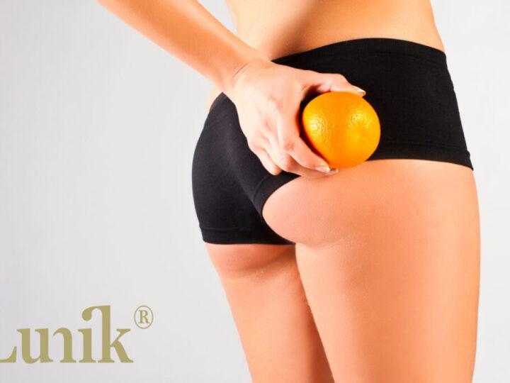 ¿Celulitis o piel de naranja?