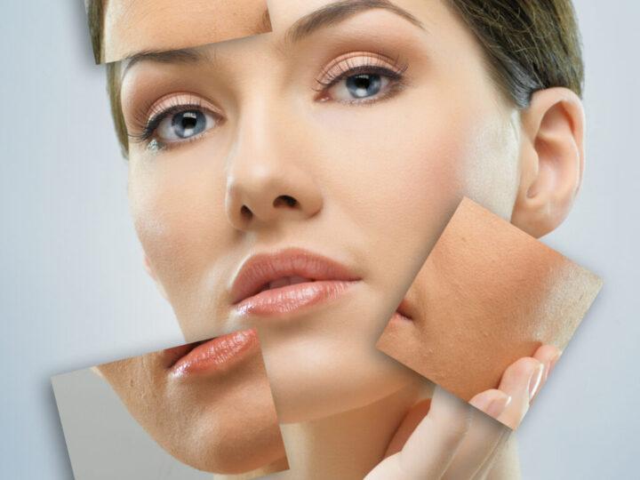 Aprende a tratar tu piel sensible durante elinvierno